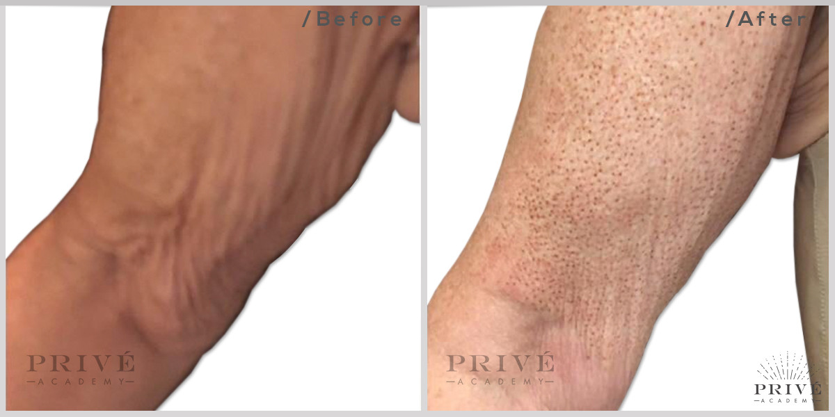 Fibroblast Skin Tightening Arms Before & After