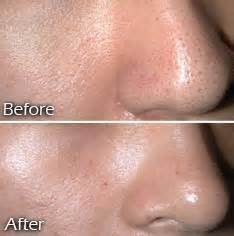 Micro-Channeling for Large Pores and Texture Before & After
