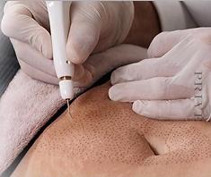 Fibroblast Skin Tightening, Plasma Fibroblast, tummy lift tummy tightening