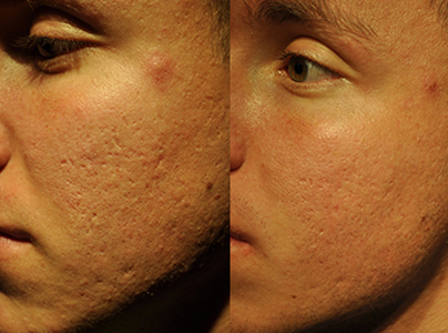 Micro-Channeling for Pitted Acne Scarring Before & After