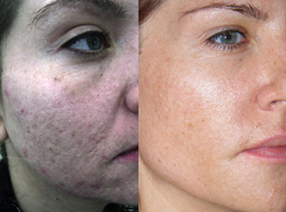 Micro-Channeling for Acne Scarring Before & After