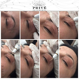 Fibroblst Skin Tightening Process