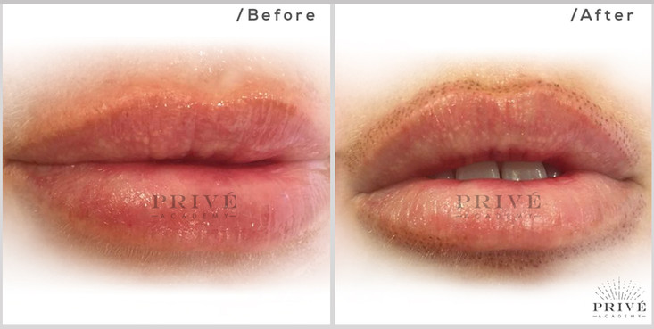 Fibroblast Skin Tightening Lip Lift and Plumping Before & After