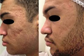 Unknown.jpegMicro-Channeling for Deep Acne Scarring Before & After