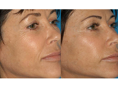 Micro-Channeling for Wrinkles Before & After