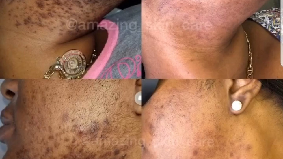 SMALL AREA LASER HAIR REMOVAL