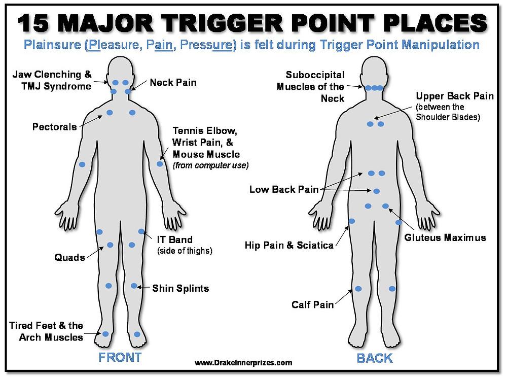 טריגר פוינטס נפוצים בגוף האדם