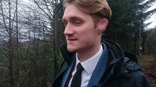 Ears Prosthetic