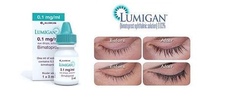 lumigan eye lash.jpg