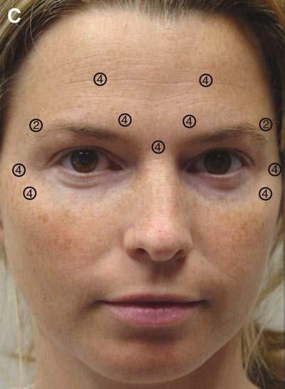 Anti Wrinkle Treatment - One Area