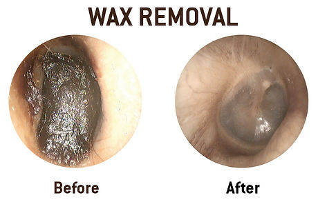 wax-removal.jpg