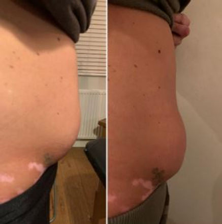 fat loss injection.JPG
