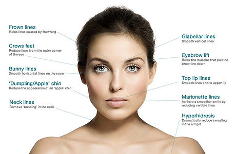 Areas for wrinkles