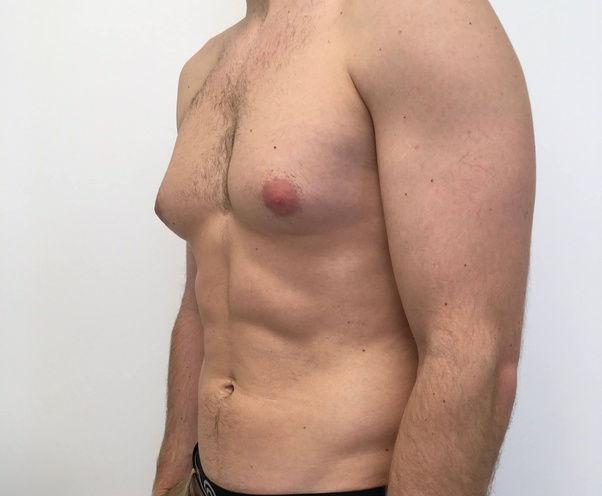 Fat Dissolving Injections - Mens Boob