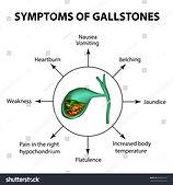 symptoms-of-stones-in-the-gallbladder.jp