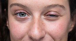 myasthenia gravis eye droop.jpg