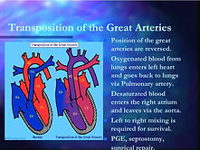 transposition-of-the-great-arteries-l.jp