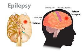 migralepsy2.jpg