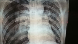 collapse lung maybe  pic.jpg