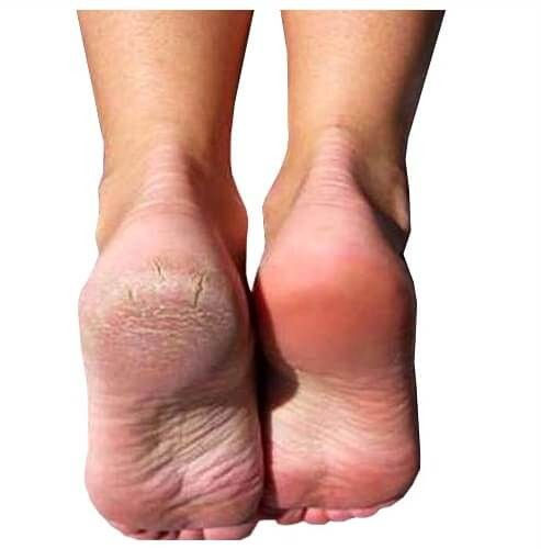 Chemical Foot Peel- Add on Service