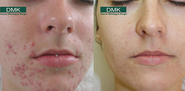 Acne Relief Facial