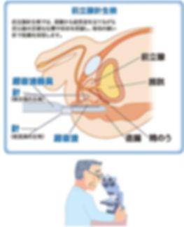 前立腺がん 針生検 ブルークロバー・キャンペーン 前立腺がん 早期発見 適切治療