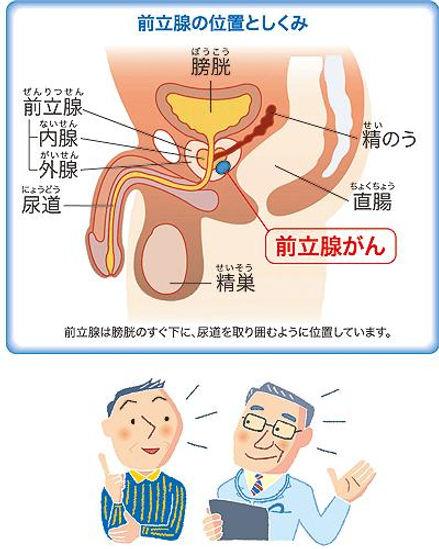 前立腺がん 位置 ブルークロバー・キャンペーン 前立腺がん 早期発見 適切治療