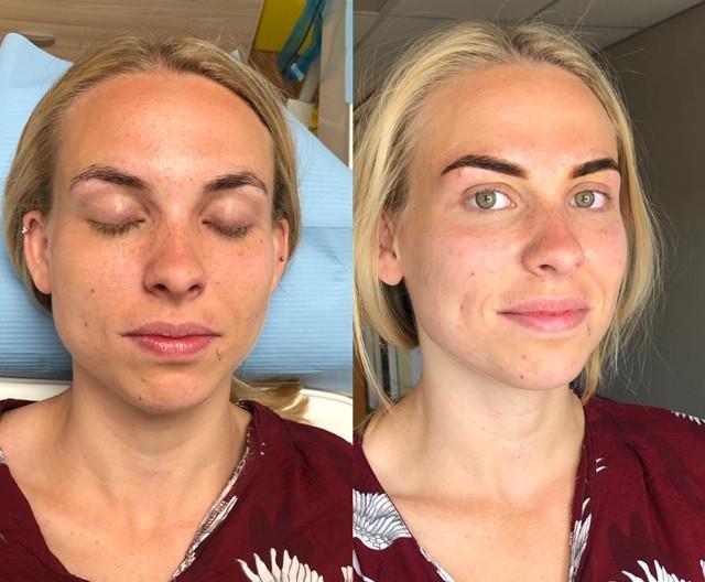 Permante make-up behandeling