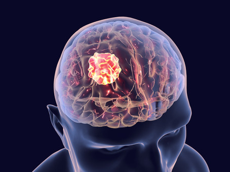 Brain Cancer: Are YOU at risk?