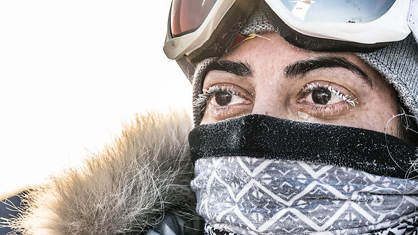 A-frozen-tear-and-frozen-eye-lashes-on-M