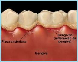 Inter-relação da doença periodontal com problemas sistêmicos