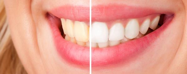 Antes e depois de um procedimento de Clareamento Dentário