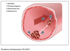 Cirurgia e risco de trombose venosa: fique atento!
