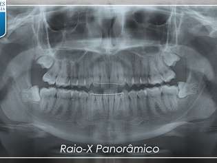 Dentes do Siso - Por que remover?