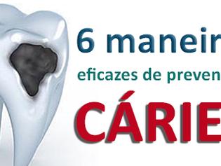 6 maneiras eficazes de prevenir as cáries