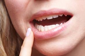 Câncer de boca: o papel fundamental do cirurgião-dentista