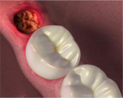 """Cicatrização pós-extração de Siso - o """"buraco"""" que fica no lugar do dente depois da cirurg"""