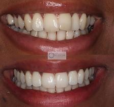 TeethByTeki_Invisalign_beforeAfter1.PNG