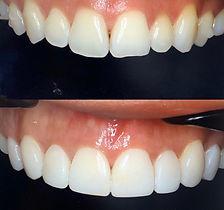 TeethByTeki_Composite_Bonding_beforeAfte