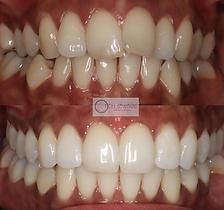 TeethByTeki_Invisalign_beforeAfter2.PNG