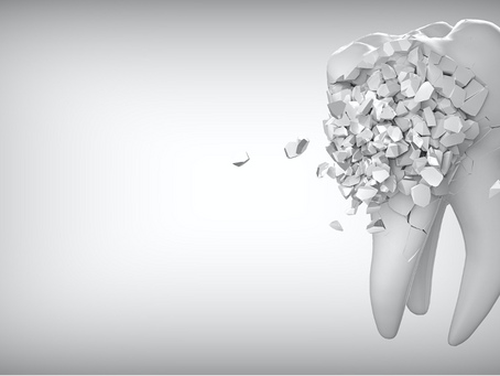 3 Rare Reasons for Dental Implant Failures to Address before You Get Them