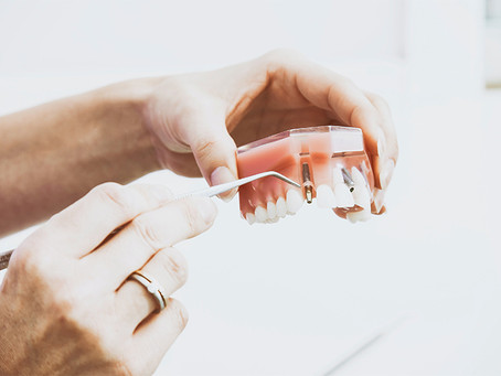 Dental Implants vs. Dentures: Let's Help You Decide