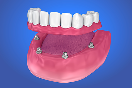 implant-overdenture.png