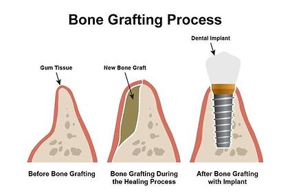 bone_grafting.png
