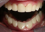 Veneers to correct crooked teeth. Dentist Olympia Lacey Tumwater WA