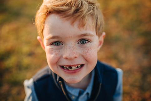 boy with missing teeth