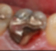 tooth 6.JPG