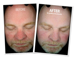 HydraFacial Before and After 1