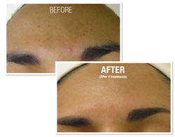 HydraFacial Before and After 2
