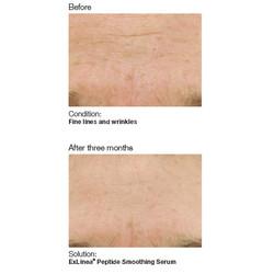 PCA Skin 5